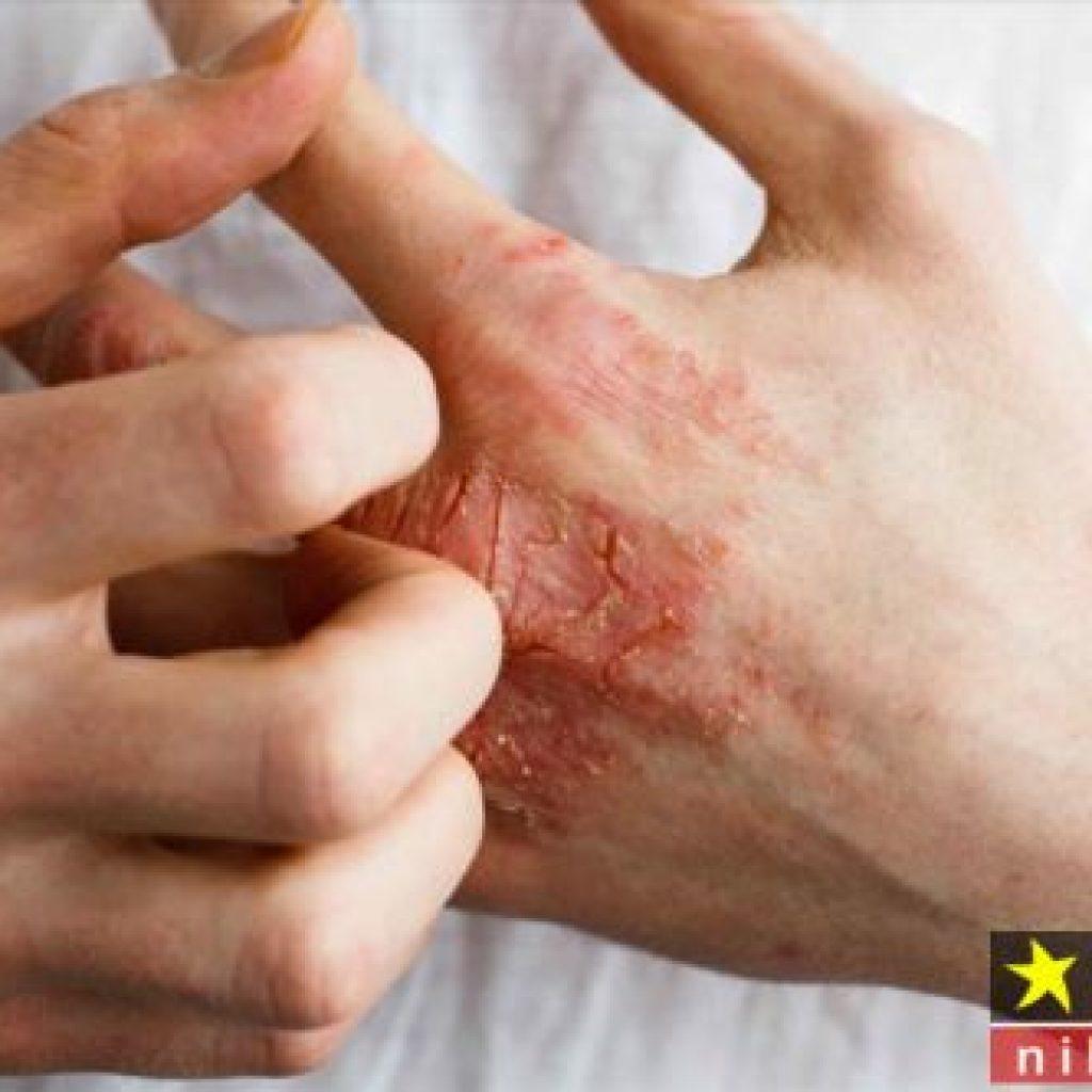 پماد ضد خارش پوست