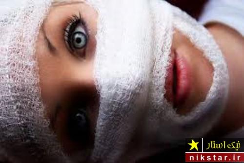 جزئیات اسید پاشی روی زن