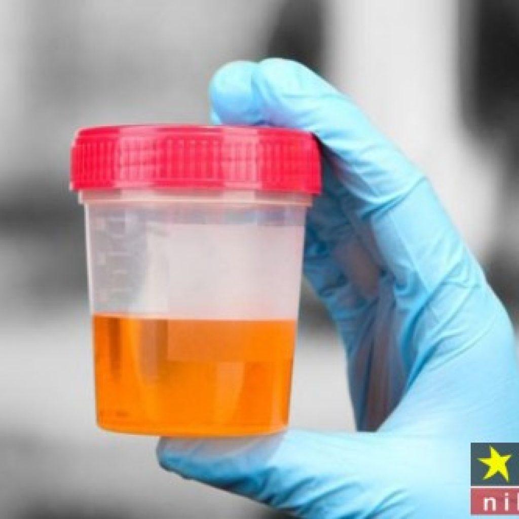 mucus در آزمایش ادرار
