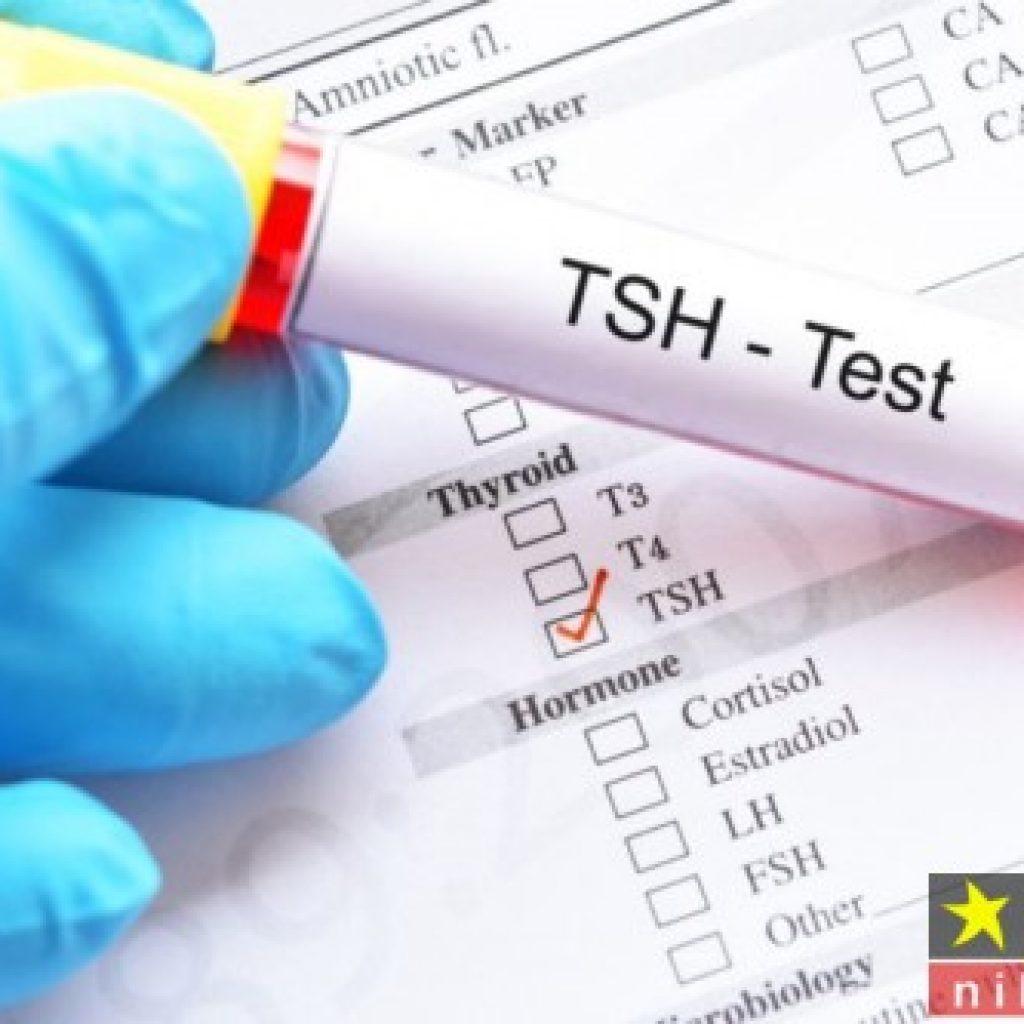 آزمایش tsh چیست