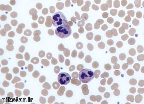 نوتروفیل در آزمایش خون چیست