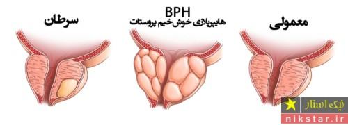 پروستات چگونه درمان میشود