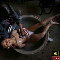 عکس های تلخ از افراد فقیر و بیماران ایدزی در جهان