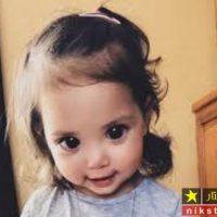 بیماری نادر دختر خوشگل با چشمان درشت و شهلا + تصاویر