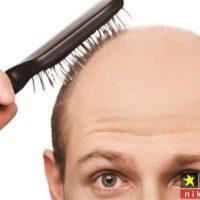 20 روش معجزه گر جهت درمان و جلوگیری از ریزش موی سر و تقویت موی سر