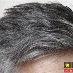 درمان سفیدی مو با هلیله سیاه همراه با طریقه مصرف
