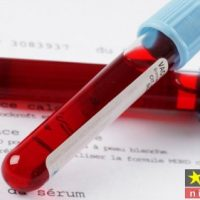 pdw در آزمایش خون چیست و مقدار نرمال آن چقدر است؟