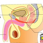 پروستات چیست و چگونه درمان میشود؟ علل ایجاد و روشهای درمان پروستات